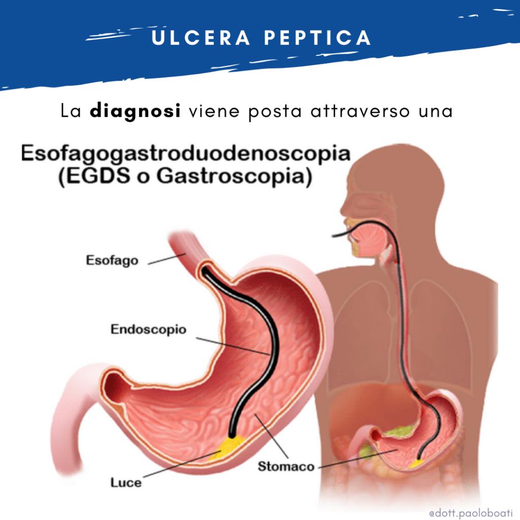 ulcera peptica h pylori