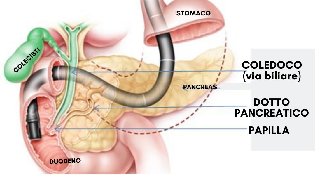 ERCP – Colangiopancreatografia endoscopica retrograda